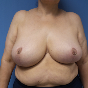 65-74 year old woman treated with Breast Reduction after 3087394
