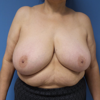 65-74 year old woman treated with Breast Reduction before 3087394