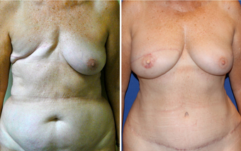 DIEP - Breast Reconstruction before 331098