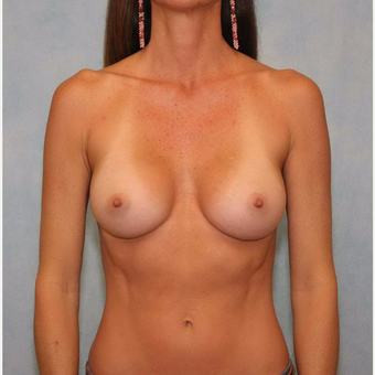 45-54 year old woman treated with Breast Augmentation after 3487447
