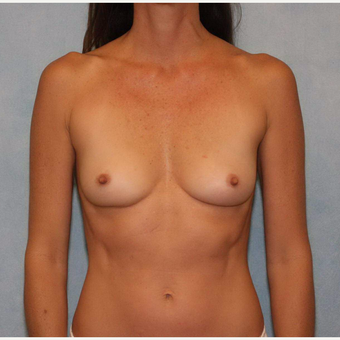 45-54 year old woman treated with Breast Augmentation before 3487447