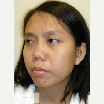 25-34 year old woman treated with Asian Rhinoplasty before 3692072