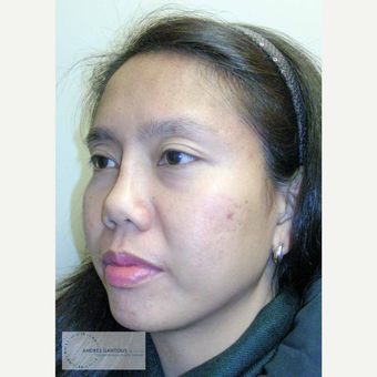 25-34 year old woman treated with Asian Rhinoplasty after 3692072