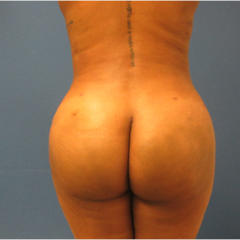 25-34 year old woman treated with Brazilian Butt Lift after 3724864
