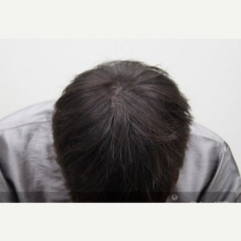 25-34 year old man treated with Scalp MicroPigmentation after 2006862