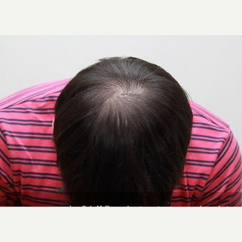 25-34 year old man treated with Scalp MicroPigmentation before 2006862