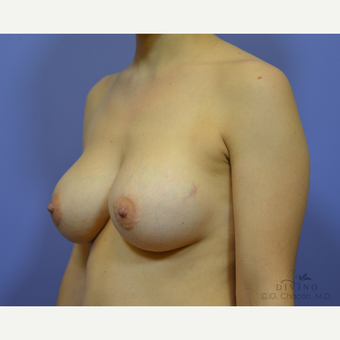 25-34 year old woman treated with Breast Implant Revision before 3415839