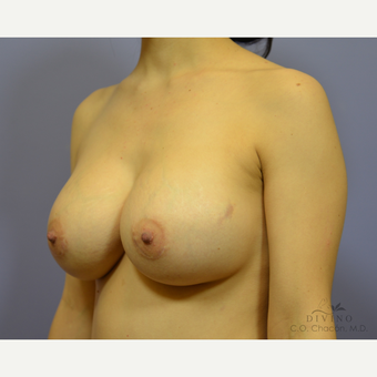 25-34 year old woman treated with Breast Implant Revision after 3415839