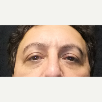55-64 year old man treated with Eyelid Surgery after 3163740