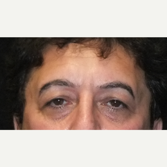 55-64 year old man treated with Eyelid Surgery before 3163740