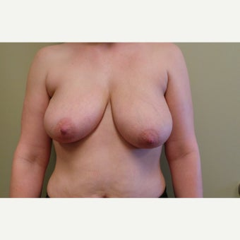 35-44 year old woman treated with Breast Lift before 2100960