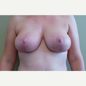 35-44 year old woman treated with Breast Lift after 2100960