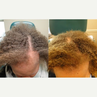 45-54 year old woman treated with PRP for Hair Loss before 2554160
