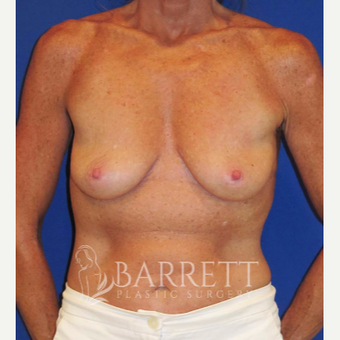 55-64 year old woman treated with Breast Lift before 3584139