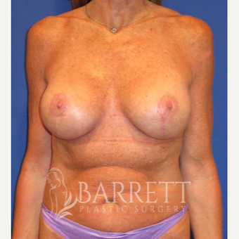 55-64 year old woman treated with Breast Lift after 3584139