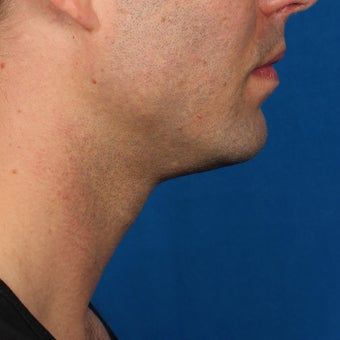 35-44 year old man treated with Kybella after 2224860