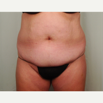 45-54 year old woman treated with Mini Tummy Tuck before 2696627