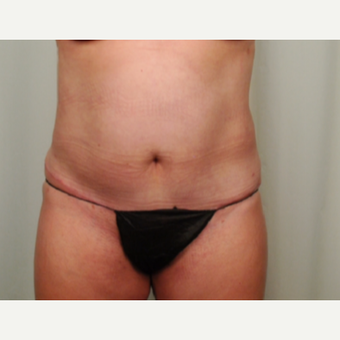 45-54 year old woman treated with Mini Tummy Tuck after 2696627