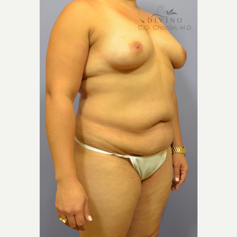 35-44 year old woman treated with Mommy Makeover before 3421646