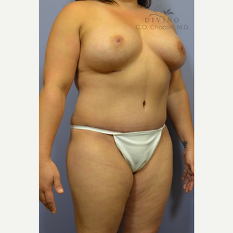 35-44 year old woman treated with Mommy Makeover after 3421646
