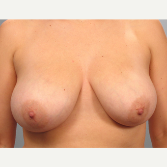 25-34 year old woman treated with Breast Lift before 3453331