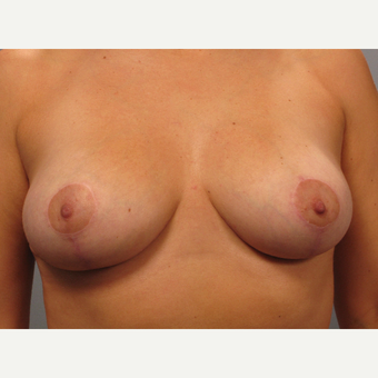 25-34 year old woman treated with Breast Lift after 3453331