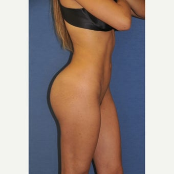18-24 year old woman treated with Brazilian Butt Lift Liposuction and Fat Transfer with Body Contouring