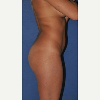 18-24 year old woman treated with Brazilian Butt Lift before 2248461