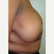 25-34 year old woman treated with Breast Reduction before 3093359