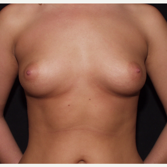 18-24 year old woman treated with Breast Implants before 3602762