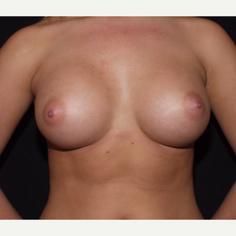 18-24 year old woman treated with Breast Implants after 3602762