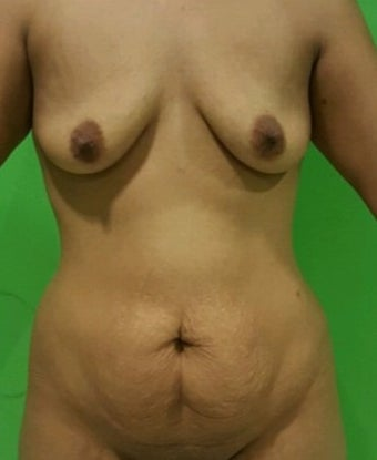 25-34 year old woman treated with Mommy Makeover before 2534135