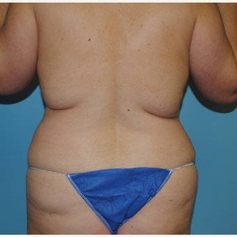 35-44 year old woman treated with Liposuction before 3069299