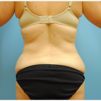 35-44 year old woman treated with Liposuction after 3069299