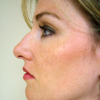 35-44 year old woman treated with Rhinoplasty before 3320876