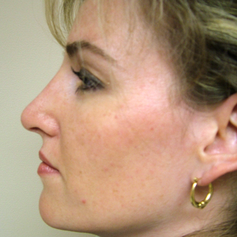 35-44 year old woman treated with Rhinoplasty after 3320876