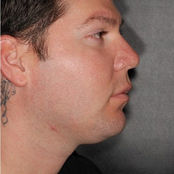 25-34 year old man treated with Buccal Fat Removal before 2231882
