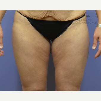 35-44 year old woman treated with Thigh Lift before 2781838