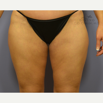 35-44 year old woman treated with Thigh Lift after 2781838