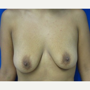 Breast Lift before 3055035