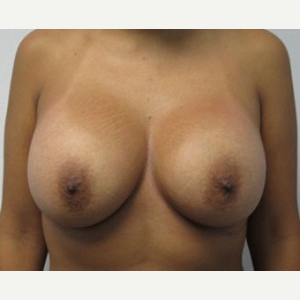 Breast Lift after 3055035