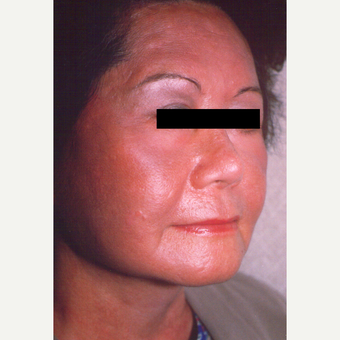 55-64 year old woman treated with Chemical Peel after 3543512
