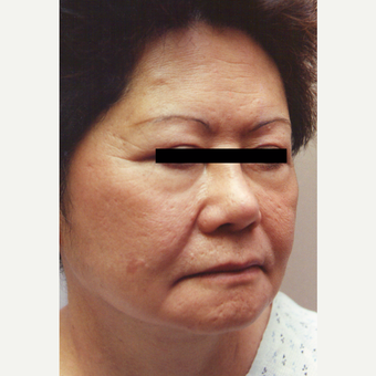 55-64 year old woman treated with Chemical Peel before 3543512
