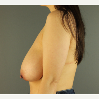 35-44 year old woman treated with Breast Reduction before 3103874