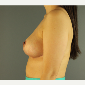 35-44 year old woman treated with Breast Reduction after 3103874