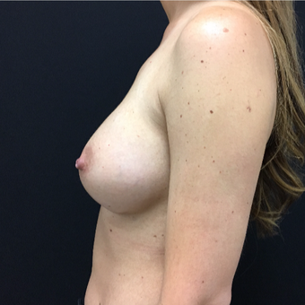 35-44 year old woman treated with Breast Augmentation after 3493840