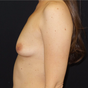 35-44 year old woman treated with Breast Augmentation before 3493840