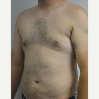 25-34 year old man treated with Male Breast Reduction after 3175419