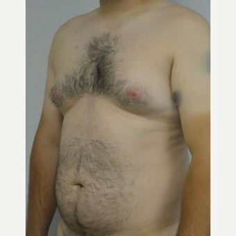 25-34 year old man treated with Male Breast Reduction before 3175419