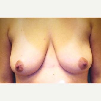 35-44 year old woman treated with Breast Lift before 3379095
